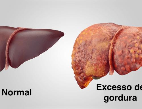 Dieta e doença hepática gordurosa não alcoólica – Esteatose hepática/fígado gordo